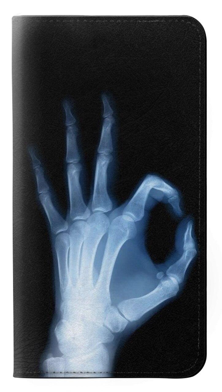 Mejores Fundas LG X Ray